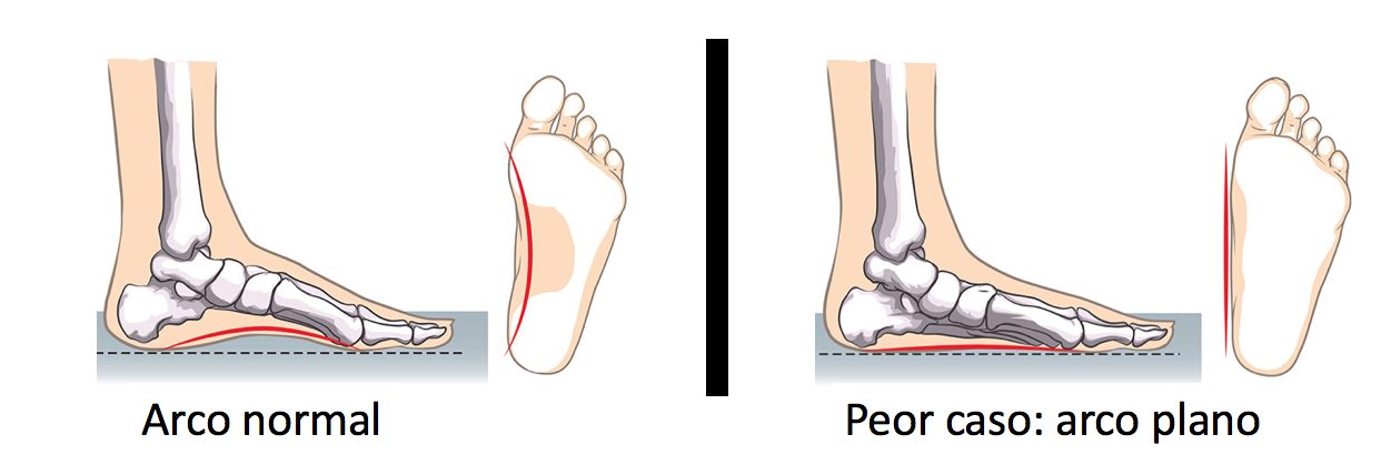zapatos bebe arco plano