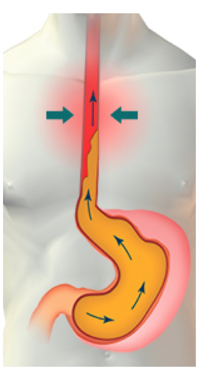 colicos lactante - reflujo gastrointestinal